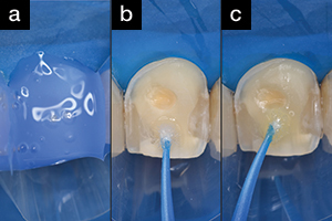 A Minimally Invasive Anterior Makeover Fabricating Direct