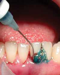 Photodisinfection The Future Of Periodontal Therapy