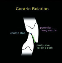view of centric relation